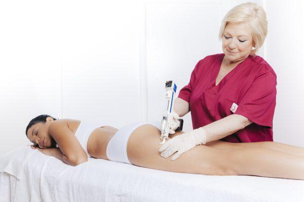 Tratamiento de mesoterapia en la Clínica Ruano