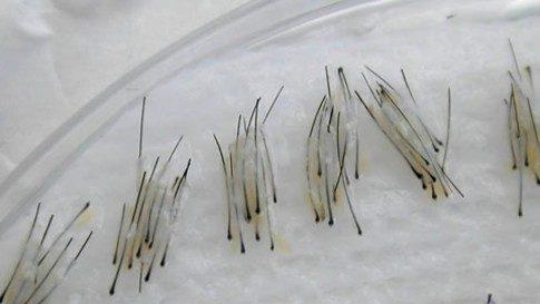 injerto-capilar