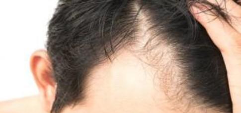 alopecia-masculina